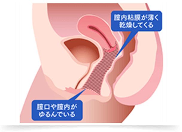 膣口や膣内は、産後のダメージや膣の老化・ホルモン低下によりゆるみ、膣内粘膜が薄くなり乾燥してきます。