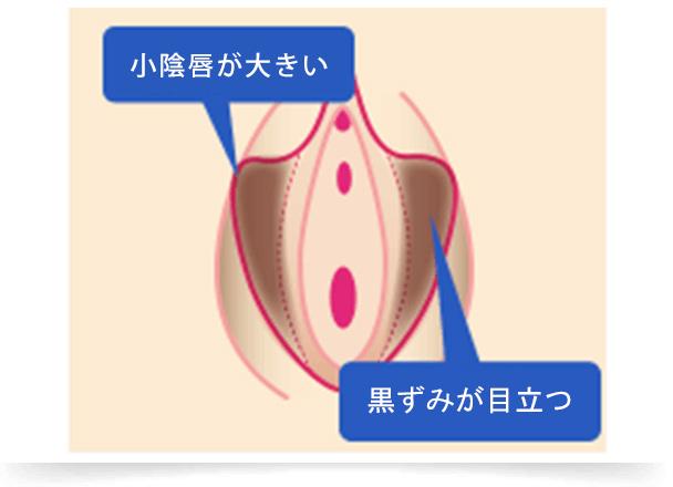 小陰唇がもともと大きく、痛みや見た目で悩む方や加齢とともにゆるみ、肥大化してくるなど、小陰唇のトラブルで悩んでいる方は多くいらっしゃいます。 すると、下着との摩擦により黒ずんだり、擦れて痛みを伴うことがあります。『小陰唇縮小術』で形をきれいに整えていくことが可能ですし、黒ずみを除去するレーザー治療も行っています。