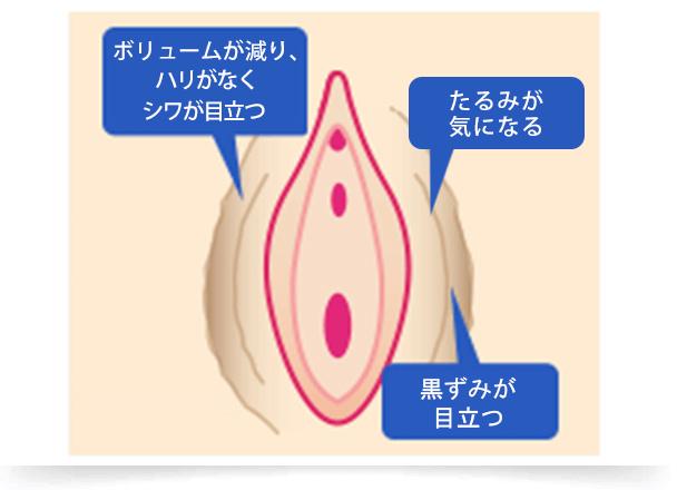大陰唇は加齢とともに脂肪が痩せてボリュームが減り、痛みを伴ったり、大陰唇全体が擦れて黒ずんだり、ダメージを受けやすくなります。 オザキクリニックでは、大陰唇増大治療や大陰唇縮小治療、黒ずみ除去治療などさまざまな治療を行っています。