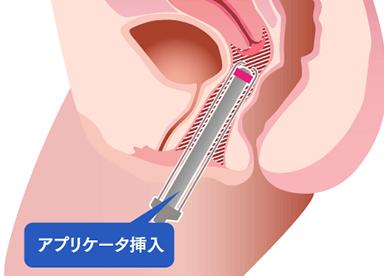 『インティマレーザー』はメスを使用した治療に抵抗がある方や、膣を若々しい状態へ改善したい方におすすめです。