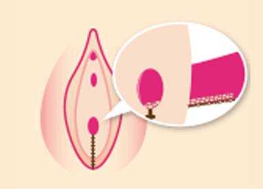 老化により膣のゆるみが進行している方は、『膣縮小術(切開法)』でゆるんだ膣内粘膜を除去して縫い縮めることで、1回の治療で症状を改善することが可能です。