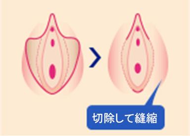 切開を最小限に抑えて余剰部分を切除し、美容観点から小陰唇の形状を小さく美しく仕上げます。1回の治療で高い治療効果が得られます。