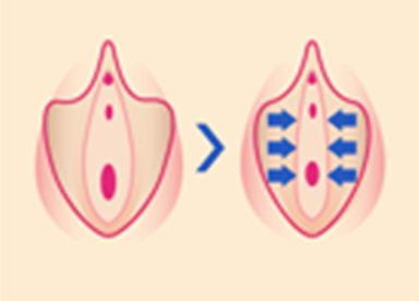 小陰唇周辺にレーザーを照射することで、ゆるんでいた小陰唇を強力に引き締めます。膣口や尿道口付近のゆるみも合わせて改善します。
