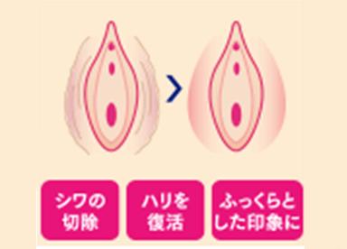 大陰唇の脂肪が減少し痩せている場合は、内側からふっくらと若返らせる『大陰唇増大術』が効果的です。手軽に受けられる「ヒアルロン酸」か、持続効果が高い「脂肪注入」のいずれかからお選びいただけます。