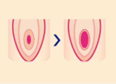 『処女膜切開術』では、処女膜の発達具合や硬さ、大きさなどに応じて適切に治療を行い、処女膜の穴を広げます。処女膜手術をすることで痛みが大幅に緩和され、パートナーとの円滑な性交が叶います。