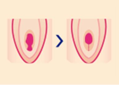 『処女膜再生術』では、裂けた処女膜を溶ける糸で縫い合わせることで処女膜を形成します。性交時に出血をさせる方法や膣粘膜から処女膜を再生する治療も行っています。