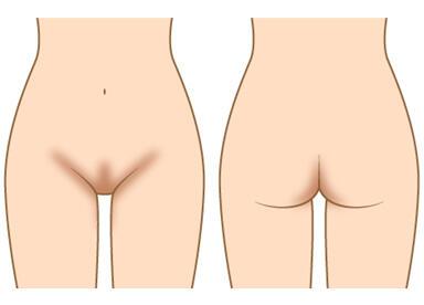 ピーリング剤を塗布し、拭き取ることで、黒ずんでしまった部分の改善が見込めます。大陰唇だけでなく、VIOラインに使用が可能です。使用するピーリング剤はデリケートゾーン専用につくられたものなので、肌に優しく安心してお使いいただけます。