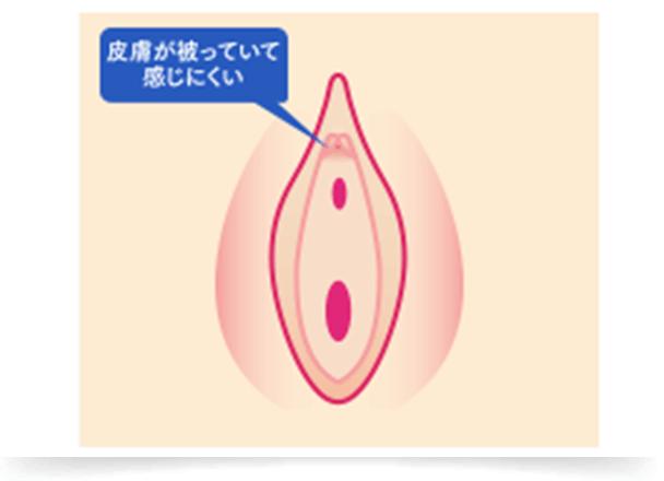 不感症やクリトリスに皮膚が被っていて感じにくいなど、より感度を高めたいという方にもおすすめなのが『陰核(クリトリス)包茎切除術』です。