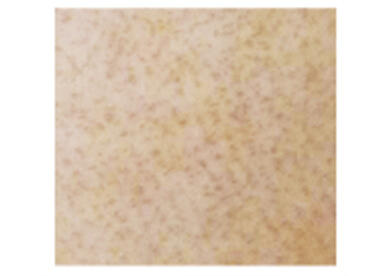 サリチル酸マクロゴールピーリング画像