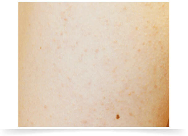毛孔性苔癬フラクセルのイメージ