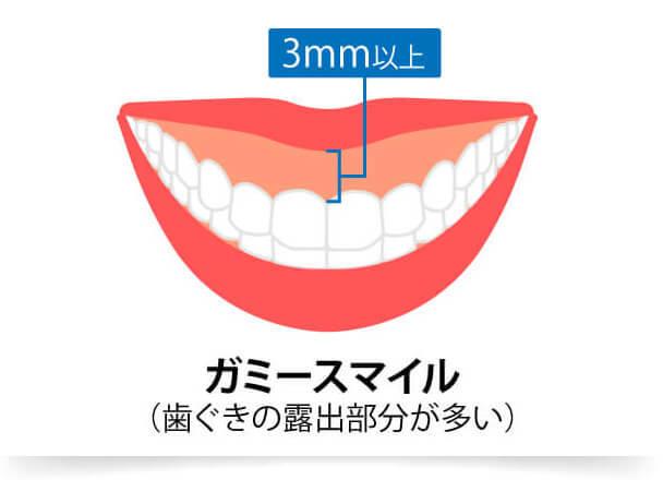 笑った時に歯茎が3mm 以上見えている状態を「ガミースマイル」といい、ガミースマイルを改善することで、思いっきり笑っても歯茎の露出を気にせずお過ごしいただけます