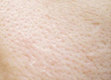 毛穴の開き・黒ずみイメージ
