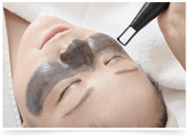 毛穴を集中ケアする高周波&レーザー治療イメージ