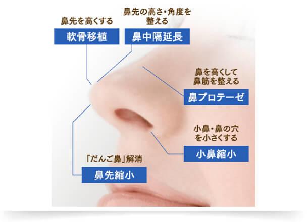 立体的な顔立ちを目指すのなら、鼻を高くしたり、鼻筋を通すことが大切。存在感がある大きすぎる鼻や小鼻が広がっている鼻は、バランスをみて縮小することで、悩みの改善へつながります。ご希望や顔全体のバランスを考慮して、複数の施術を組み合わせることもあります。イメージする鼻の形や高さ、持続性などを踏まえて施術を選ぶことで、理想の鼻ラインが手に入ります。