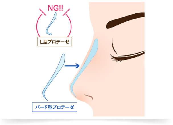 鼻を高くする隆鼻術には、簡単・手軽な『ヒアルロン酸注射』をはじめ、鼻に「プロテーゼ」を入れて鼻筋ラインを高く整えることができる『鼻プロテーゼ』、自身の軟骨を使う『耳介軟骨移植(鼻先を高く)』などの治療法があります。