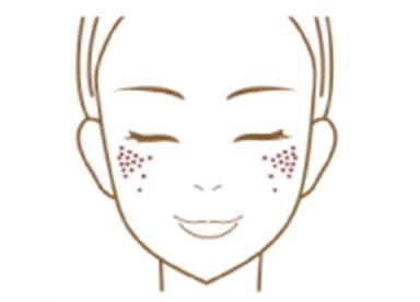 ADM(後天性真皮メラノサイト―シス)イメージ