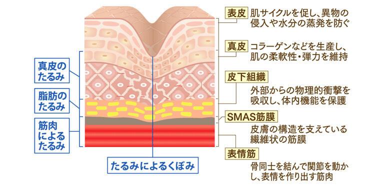 年齢とともに肌老化や筋力低下が進行することで、皮膚や脂肪、筋膜などがゆるみ、下垂し「たるみ」となります。たるみの種類は皮膚構造と密接な関係があり、皮膚の各層に応じて「真皮のたるみ」「脂肪のたるみ」「筋肉によるたるみ」「たるみによるくぼみ」の4つのタイプに分類されます。