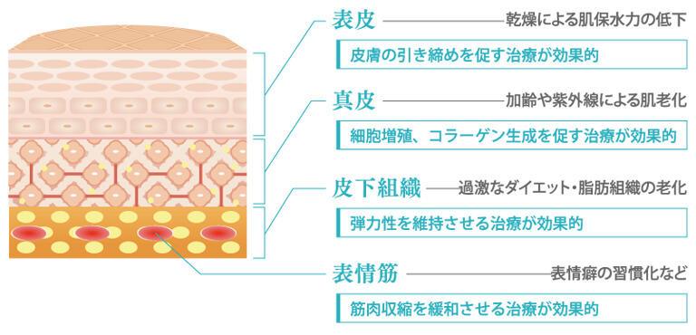 「表皮」のシワは乾燥による肌保水力の低下が原因のため、皮膚の引き締めを促す治療が効果的、「真皮」のシワは加齢や紫外線による肌老化が原因のため、細胞増殖、コラーゲン生成を促す治療が効果的、「皮下組織」のシワは過激なダイエット・脂肪組織の老化が原因のため、弾力性を維持させる治療が効果的、「表情筋」のシワは表情癖の習慣化など、筋肉収縮を緩和させる治療が効果的です。