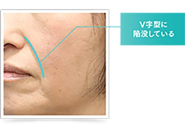 真皮のたるみは、紫外線などのダメージを受けたり、年齢とともにハリや弾力が失われることで肌を支えられず、皮膚が陥没してしまうことで起こります。このような場合は、真皮層に刺激を与えて肌を活性化させる治療や肌細胞を増やす再生医療が効果的です