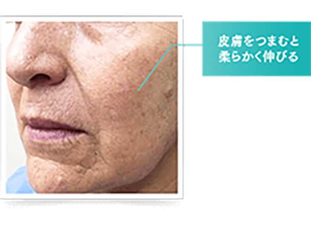 筋肉によるたるみは、老化により顔の皮膚や脂肪組織を支える筋膜がゆるんだり、筋層が衰えて皮膚を支える土台が崩れることで起こります。このような場合は、筋細胞の再構築や筋膜を引き上げる治療が効果的です。