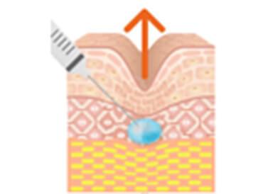 『ヒアルロン酸注射』のイメージ
