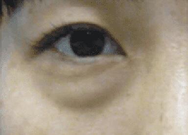 目の下のたるみのイメージ