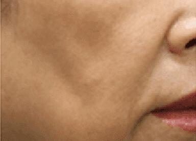 頬(ほお)のたるみのイメージ
