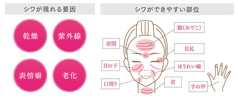 シワは、乾燥、紫外線、表情癖、老化がなどが要因で現れます。額、眉間、目尻や目の下、ほうれい線、口周り、首、手の甲にできやすいとされています。