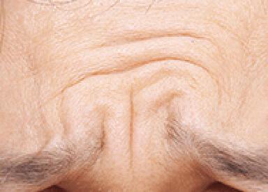 眉間のシワのイメージ