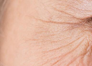 目尻のシワのイメージ
