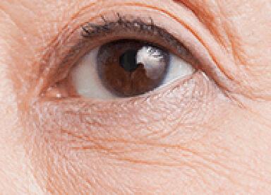 目の下のシワのイメージ