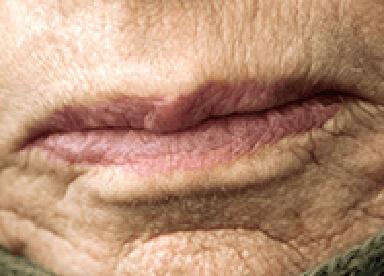 口周りのシワのイメージ