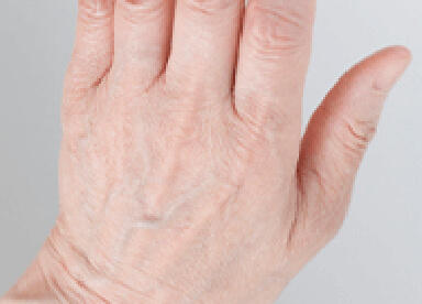 手の甲のシワのイメージ