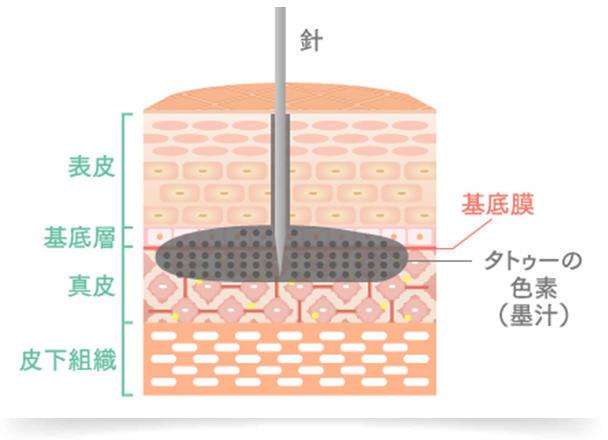 刺青・タトゥーは、針や刃物を用いて点状の傷を作り、真皮層に色素を沈着させる技法です。 皮膚は表皮と真皮、皮下組織の3つの層で構成されており、皮膚のターンオーバーは表皮の中でも最下部にある「基底層」で、新しい表皮細胞を生成しています。 しかし、表皮よりも深い真皮層に沈着している色素は、新陳代謝とともに表層に押し上げられることがないため、排出されずに肌に色素が残り続けます。また、沈着しやすい成分を使用していることも理由のひとつとして考えられます。 そのため、刺青・タトゥーを除去するには、真皮層への治療が必要となりますが、皮下組織の脂肪層にまで色素が沈着しているケースも多々あり、深層になればなるほど場合によっては治療が難しくなっていきます。