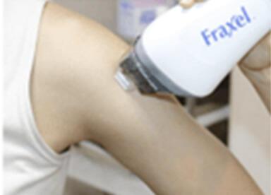 肌再生レーザーによる傷跡治療でよりきれいにイメージ