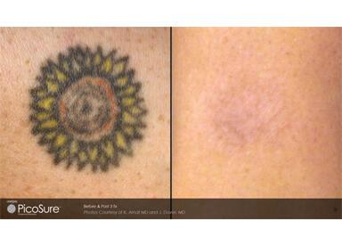 2種類のレーザーによる色素に合わせた治療イメージ